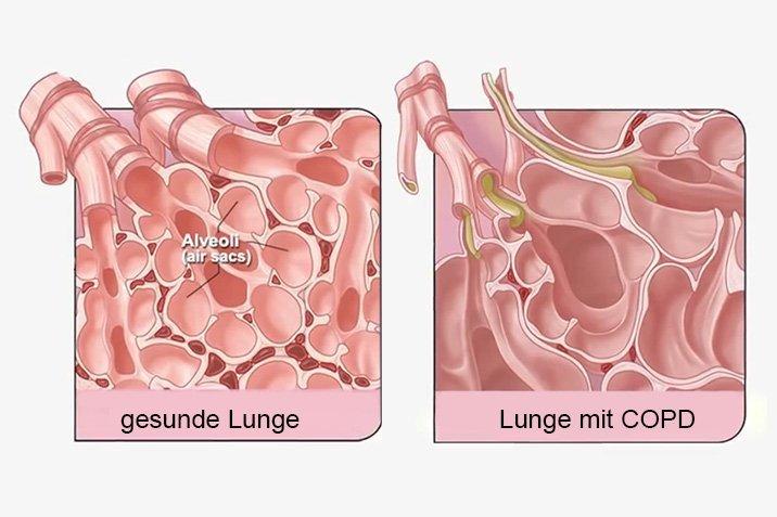 15-03-10-COPD.jpg