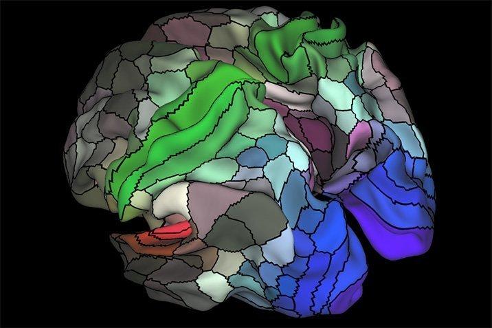 16-07-20-brainmap.jpg