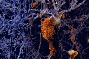 Beta-Amyloid-Plaques