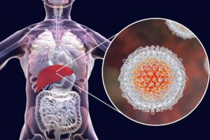 Hepatits C