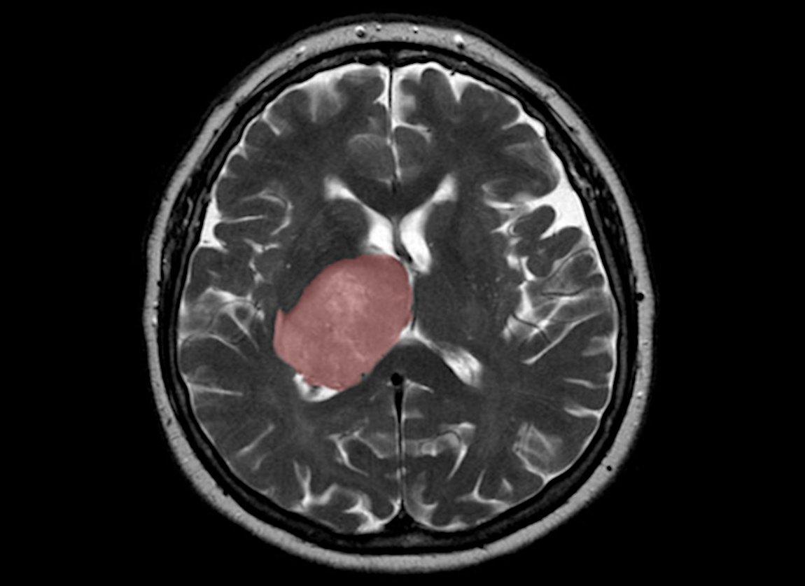 Hirnverletzungen-k-nnen-Tumorbildung-anregen