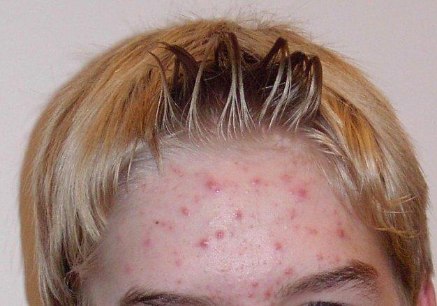 pickel stirn