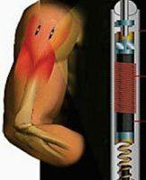 armprothese03.jpg