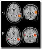 brainscans_posterior.jpg