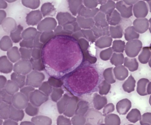 leukemia_cells.jpg