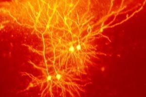 neuronen.jpg